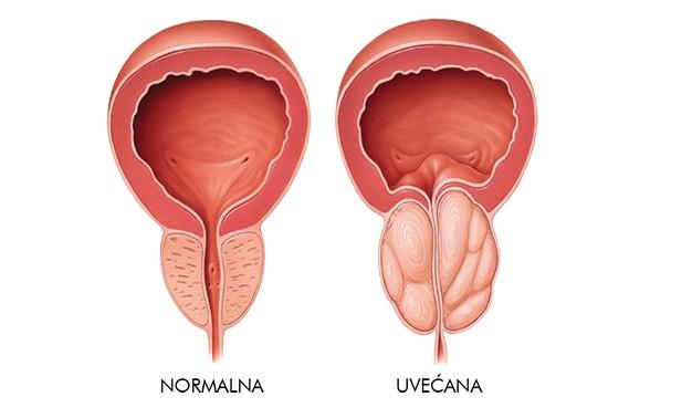 normalna-uvecana-prostata.jpg