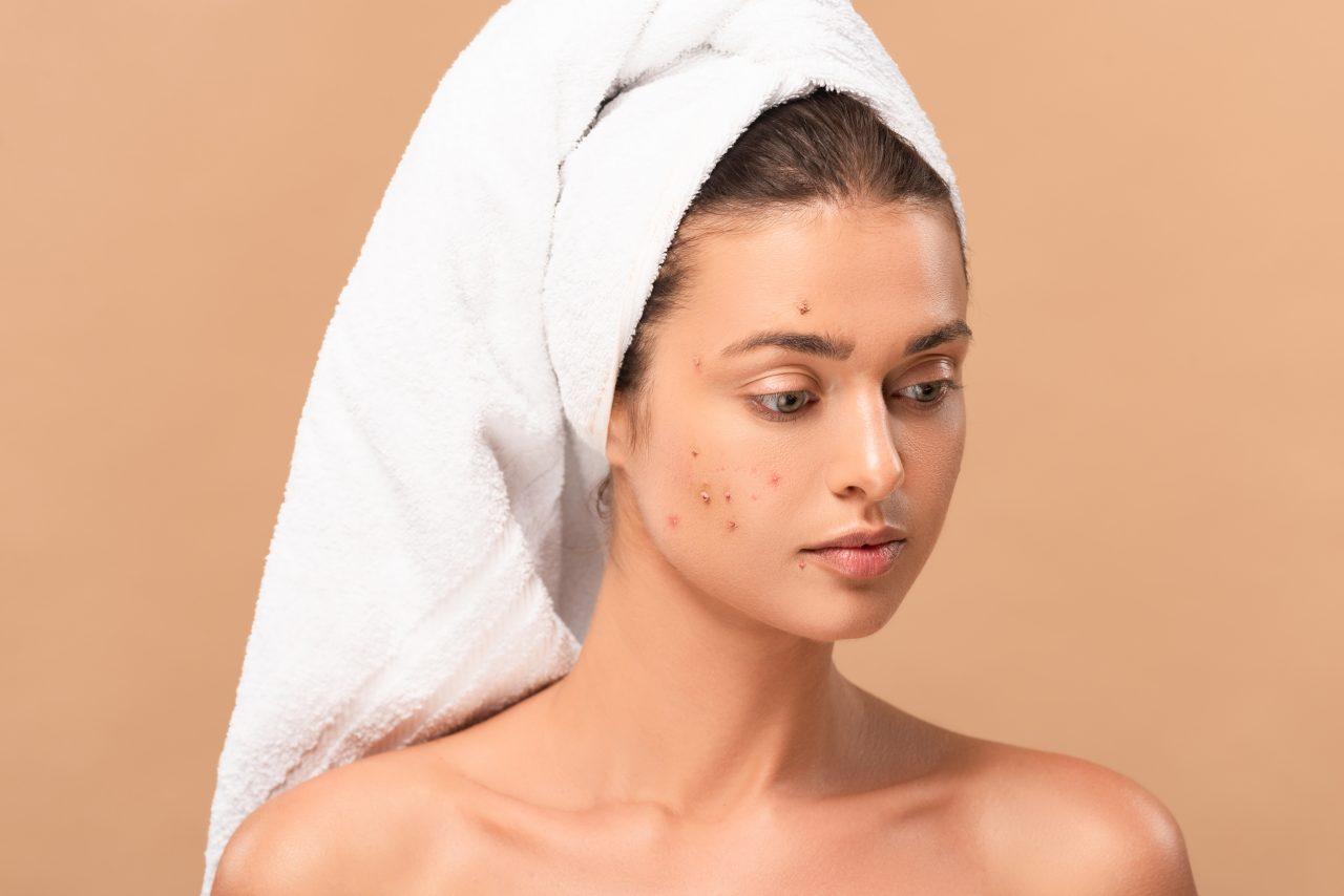 crello-334246732-stock-photo-naked-girl-towel-acne-face-1280x854.jpeg